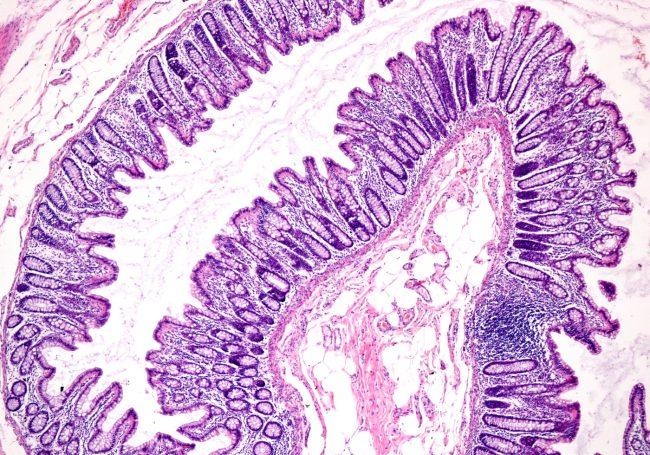 Din tjocktarm består av 100 biljoner bakterier